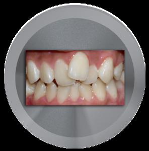 before dental veneers image