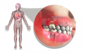 periodontal disease illustration of the mouth and body