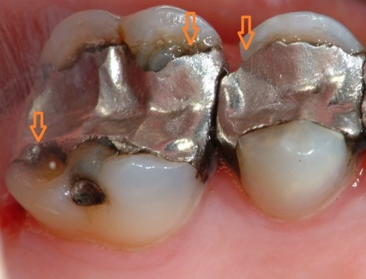 mercury free fillings and preventing toothache Lincoln NE dentist