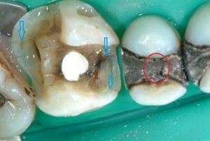 before metal free fillings (Old Fillings)