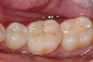 after metal free fillings example