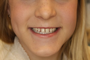 Gap Between Front Teeth Southpointe Dental Lincoln S