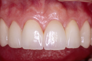 after-tooth-implant-replacing-missing-tooth