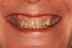 Image of a smile with teeth discoloration in Lincoln, NE.