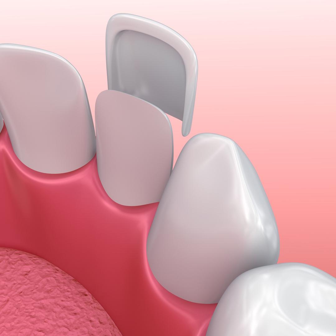 dental veneers for gaps using instant orthodontics in Lincoln, NE