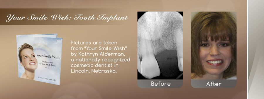 spd tooth implant banner