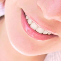 Whiter teeth patient for smile makeovers