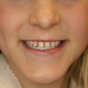 before veneers for teens treatment