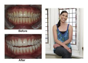 teeth-whitening-process-lincoln-NE