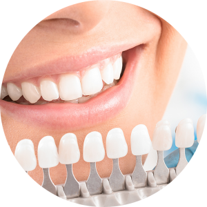 Image of teeth whitening chart to help achieve a younger smile. Find a dentist to complete a smile makeover near me today.