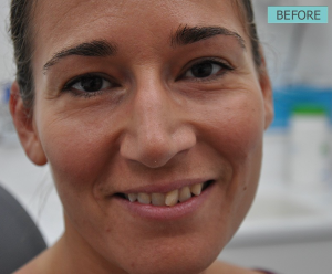 before-extreme-smile-makeover-cosmetic-dentist-Lincoon-NE