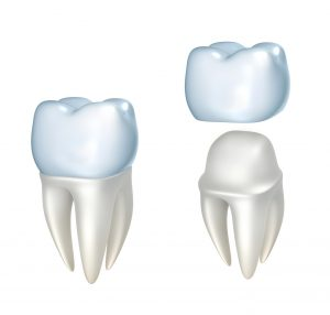 Lincoln NE dentist nickle free ceramic crown example