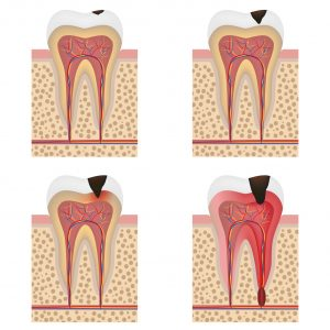 root canal progression endodontist vs dentist