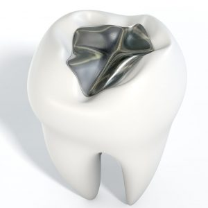 Lincoln Dentist for silver-free fillings