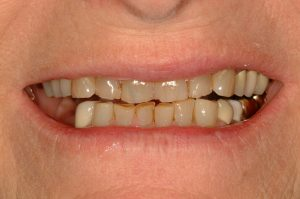 Your Smile Wish: Younger Smile close-up (before)