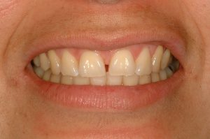 Your Smile Wish: fixing gaps close-up (before)
