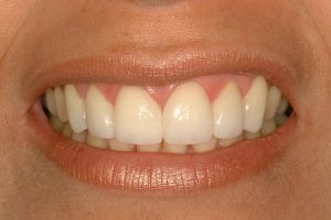 Your Smile Wish: fixing gaps close up (after)