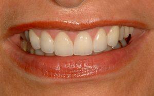 gummy smile southpointe dental lincoln ne Your Smile Wish