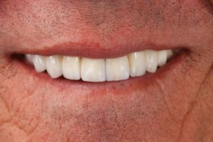 Your Smile Wish: missing teeth close-up (after)