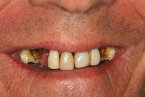 Your Smile Wish: missing teeth close-up (before)