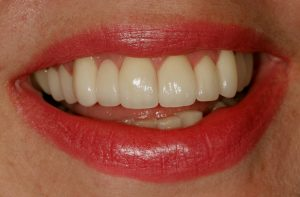 Your Smile Wish: Instant orthodontics close-up (after)