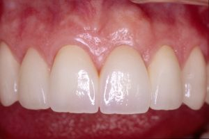 Your Smile Wish: Tooth Implant close-up (after)