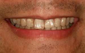 Your Smile Wish: Teeth Whitening close-up (before)