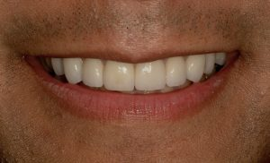 whiter teeth southpointe dental lincoln ne Your Smile Wish