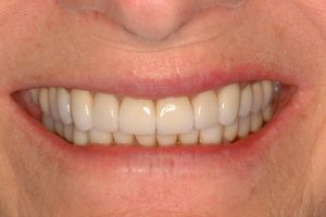 Your Smile Wish: Younger Smile close-up (after)