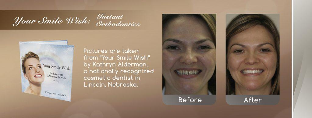 instant orthodontics before and after banner