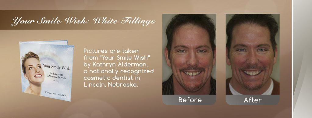 white fillings before and after banner