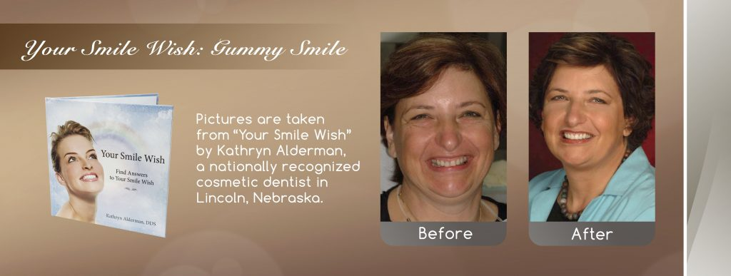 extreme smile makeover dental implant cosmetic dentist