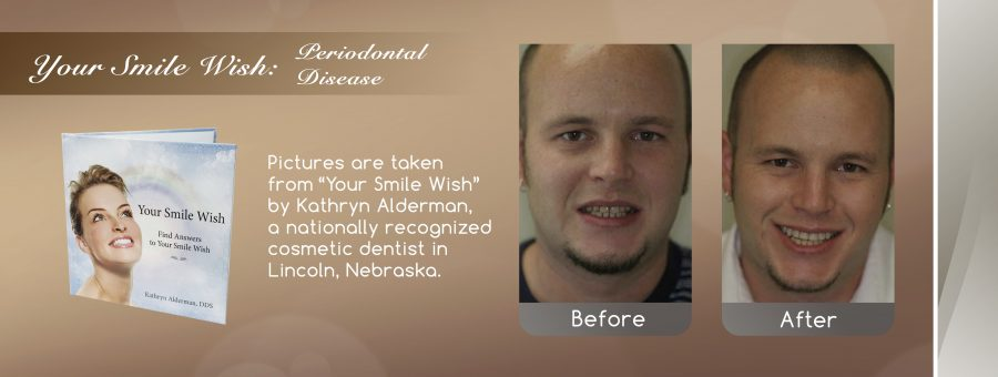 Image of before and after periodontal disease treatment in Lincoln, NE.
