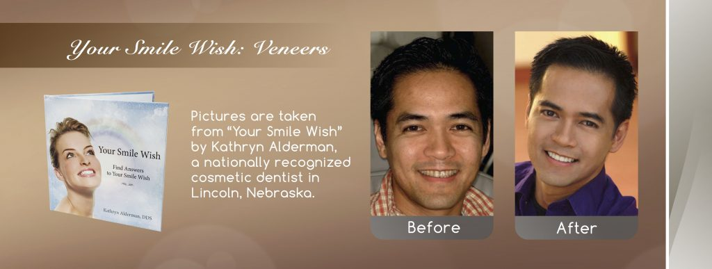 extreme Smilemakeover cosmetic dentist Lincoln NE