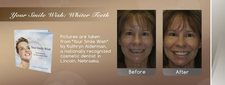 Teeth Whitening before and after banner