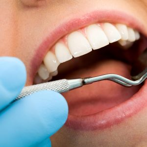 family dentistry dental cleaning picture