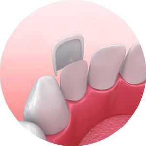 dental veneer example digital illustration
