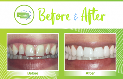 before and after veneers