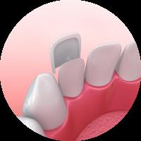 dental veneer example digital illustration